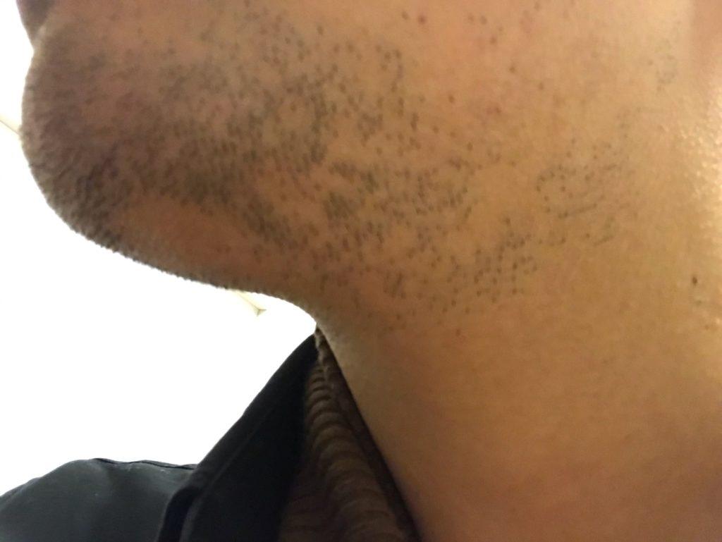 sarlisiで髭脱毛1