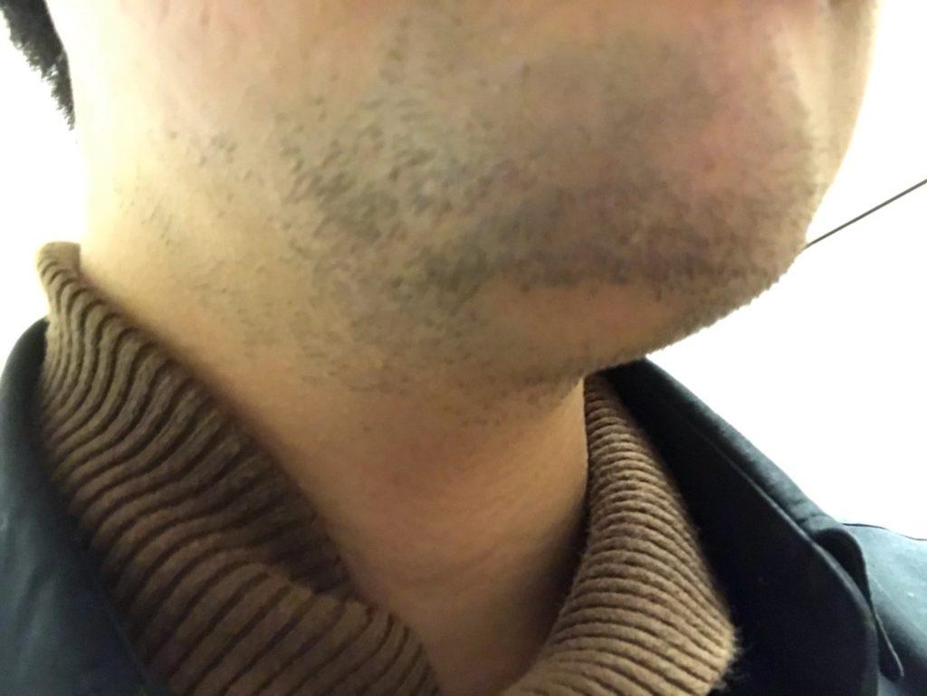 sarlisiで髭脱毛2