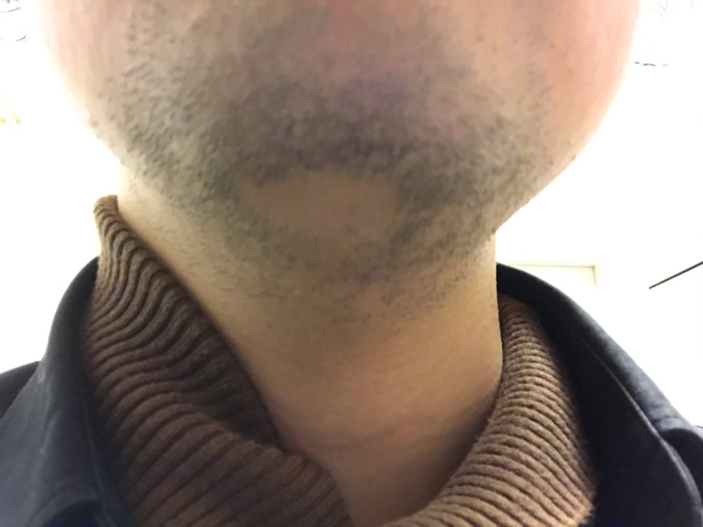 sarlisiで髭脱毛3